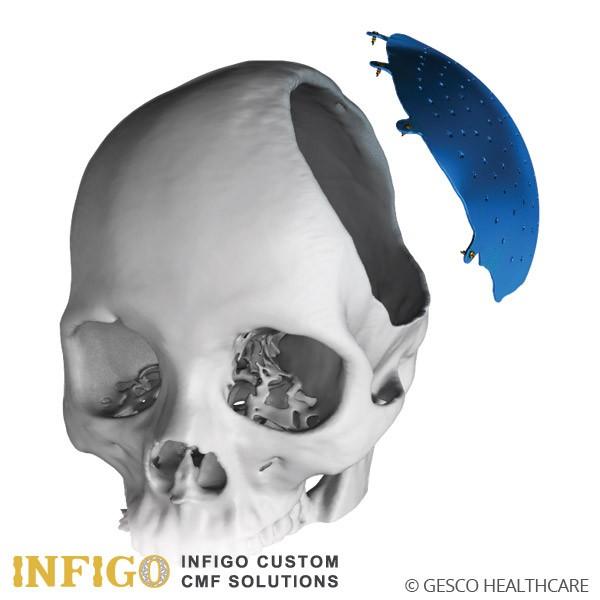 infigo cranial